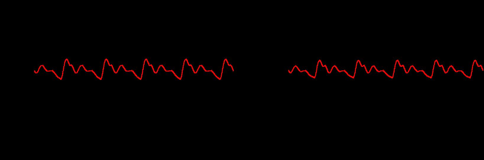 Figure 4: Output Voltage Ripple of MPM3833C